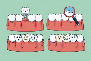 digital smile designing dentist